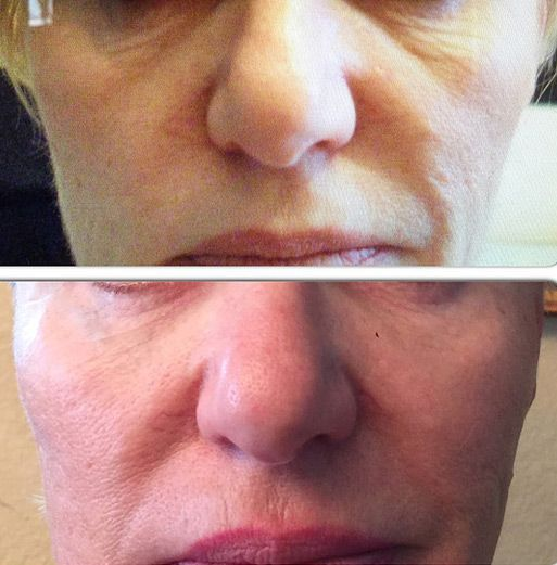 Radiesse – Dermal Filler for nasolabial folds and deep