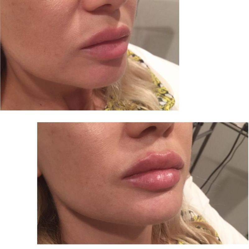 Cosmetic treatments in West Hollywood – before and after